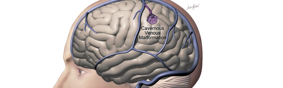 Cavernous Malformation